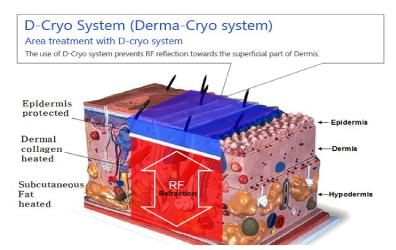 D-Cryo システムのメリット