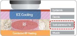 皮下脂肪加熱システム (小さなハンドルプローブ)