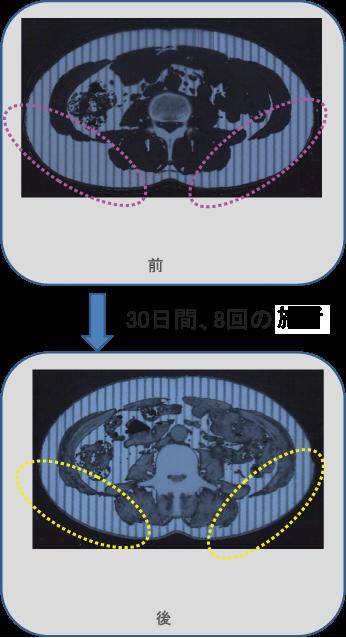 前後の比較 2(CTスキャン)